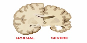 International Conference on Alzheimers, Dementia and Related Neurodegenerative Diseases   , Madrid,Spain