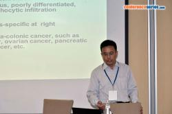 Title #cs/past-gallery/1147/senqing-chen-jiangsu-institute-of-cancer-research-nanjing-china-cancer-diagnostics-2016-conferenceseries-1466592130