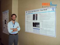 Title #cs/past-gallery/159/cancer-science-conferences-2011-conferenceseries-llc-omics-international-23-1442825255-1450069696
