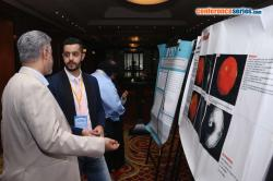 cs/past-gallery/813/poster-presentations-1-ophthalmology-2016-nov-21-23-2016-dubai-uae-conferenceseries-llc-jpg-1482928574.jpg