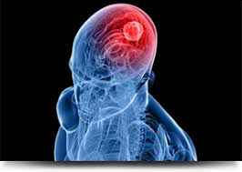 Brain Tumors & Neurosurgery