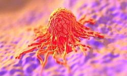 Cancer Pathology