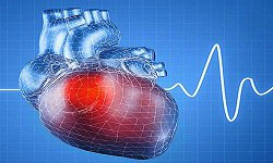 Cardiology and Hypertension