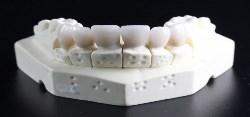 Dental Biomaterials & Bioengineering