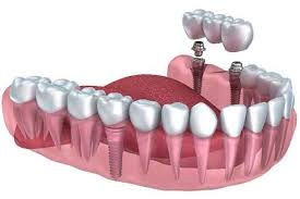 Dental Implants, Risks and Complications
