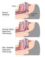 Dental Sleep Medicine and Obstructive Sleep Apnea