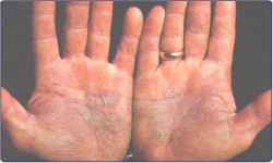 Dermatological Diseases