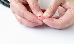 Diabetes: Oral complications