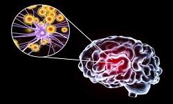 Neurological Infections