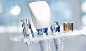 Oral Myology and Oral Implantology