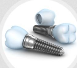 Orthodontics & Dental Implants