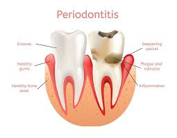 Periodontics and Preventive Dentistry