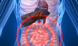 Preventing Gastrointestinal Infection