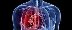 Pulmonology and Respiratory Tract Diseases
