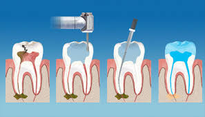 Restorative Dentistry and Endodontics