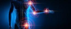 Rheumatology and Rheumatic Diseases