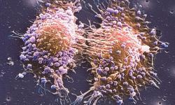 Autoimmune & Inflammatory Diseases