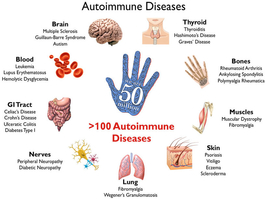 Autoimmune Disease Global Events Usa Europe Middle