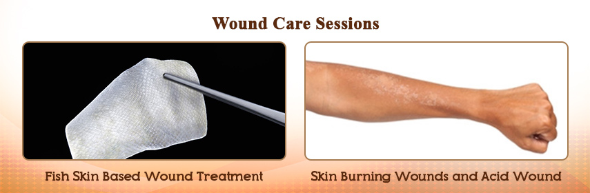 - Wound Care 2018