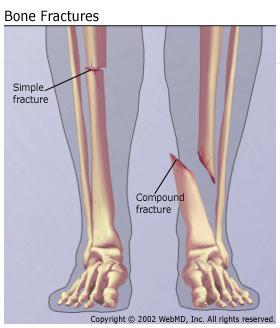 osteoporosis esc 2018 26602 osteoporosis, arthritis and musculoskeletal disorders